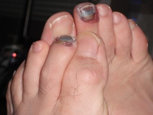 Black hiking toes